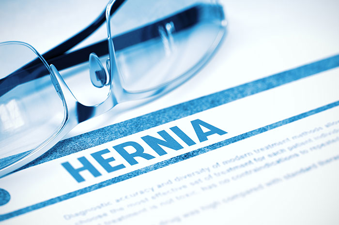 Surgical Hernia Mesh Lawsuit